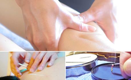 指圧・鍼灸マッサージサービス(客室にて)